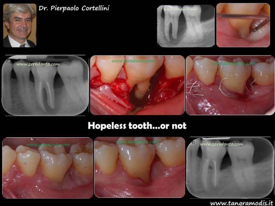 """Hopeless tooth"" treatment #2"