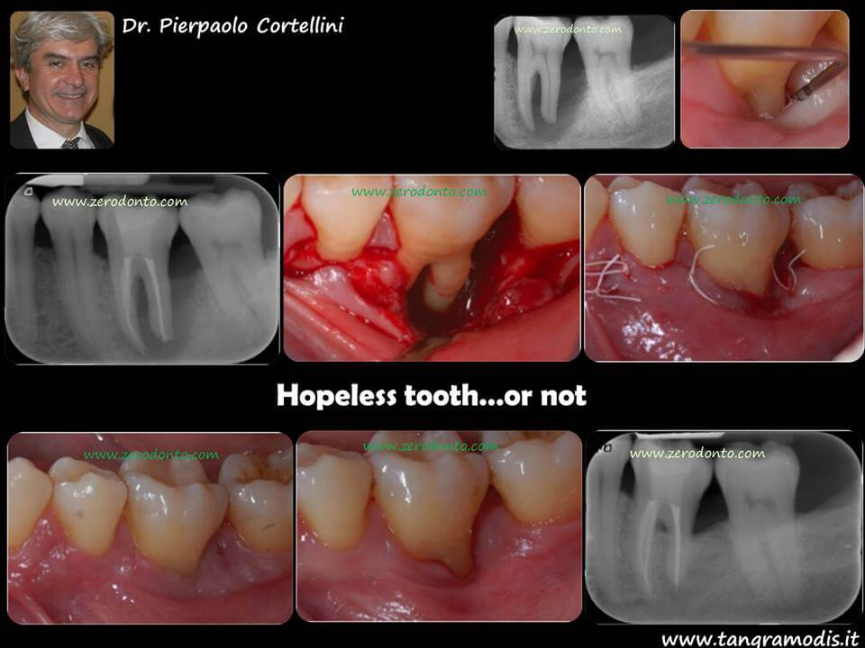 """Hopeless tooth"" treatment 1"