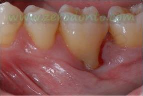 """Hopeless tooth"" treatment 2"