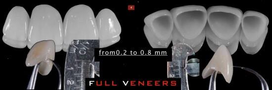 full_veneers_4