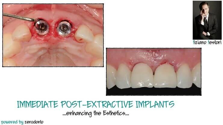 Immediate Post-Extractive Implants