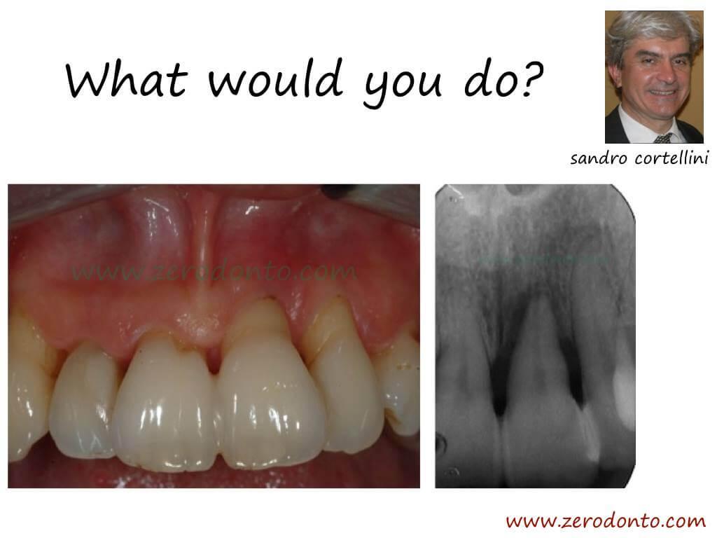"""Hopeless tooth"" treatment #1"