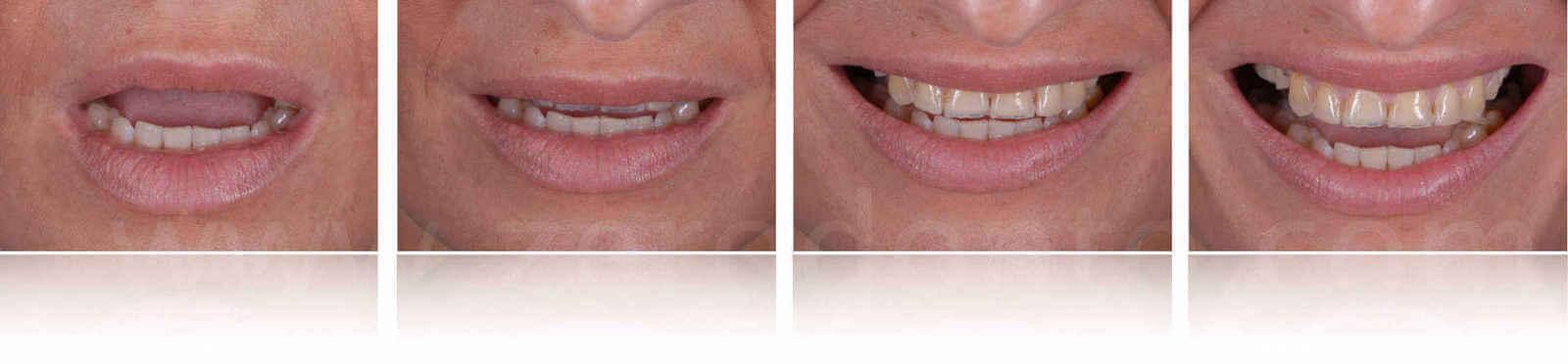 progressione del sorriso esposizione dei denti