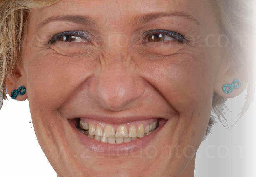 usura dentaria riabilitazione complessa mauro fradeani