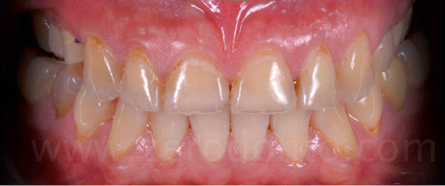 usura dentaria denti in occlusione