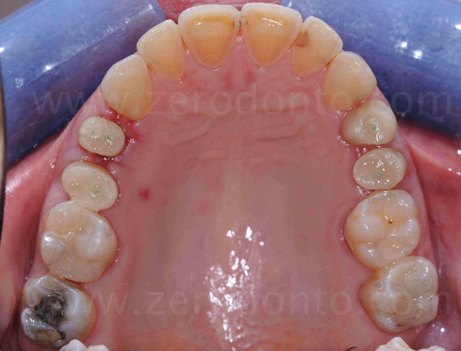 vista palatale erosione dentaria