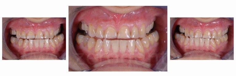 assenza della guida incisale in paziente con erosione dentale mauro fradeani zerodonto