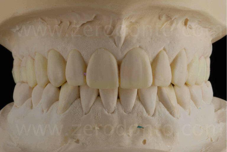 ceratura diagnostica wax-up corone disilicato di litio mauro fradeani