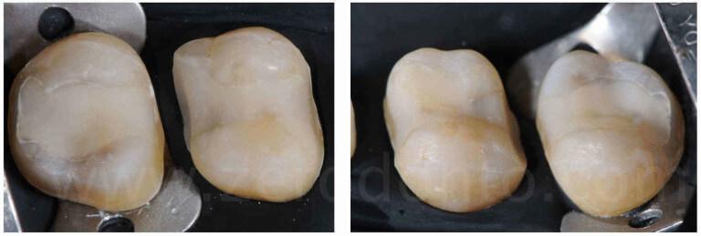 preparazione minimamente invasiva per corone in disselciato di litio