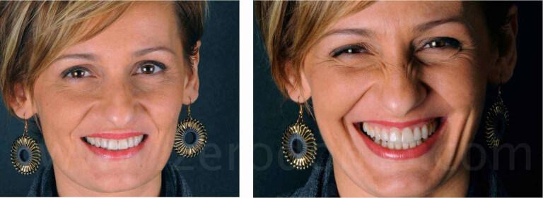 sorriso perfetto estetica del sorriso corone in disilicato di litio mauro fradeani zerodonto