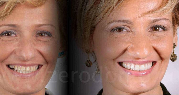 Riabilitazione protesica complessa a seguito di severa usura dentaria