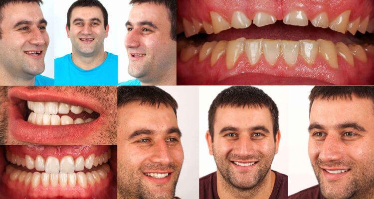 Trattamento protesico in Odontoiatria Estetica: Caso clinico vincitore n°2 dall' Aiop International Prosthodontic Contest 2014