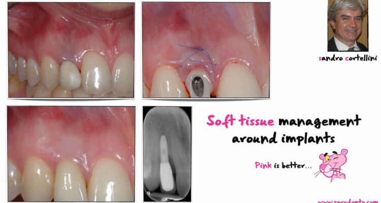 Soft tissues management at implant sites