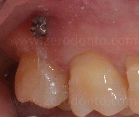 12 minivite ortodonzia