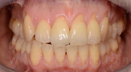 19 denti dritti