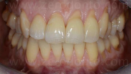 sorriso perfetto ortodonzia mariniello