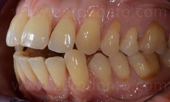 3I classe dentaria