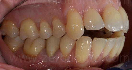 4 prima classe dentaria