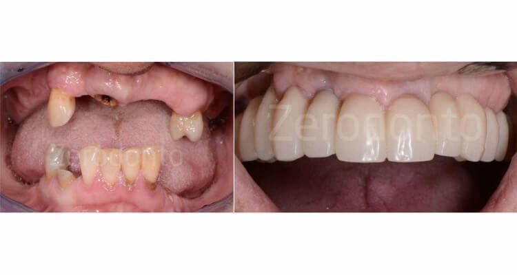 Riabilitazione di edentulia mascellare con chirurgia implantare computer-guidata e protesi provvisoria a carico immediato