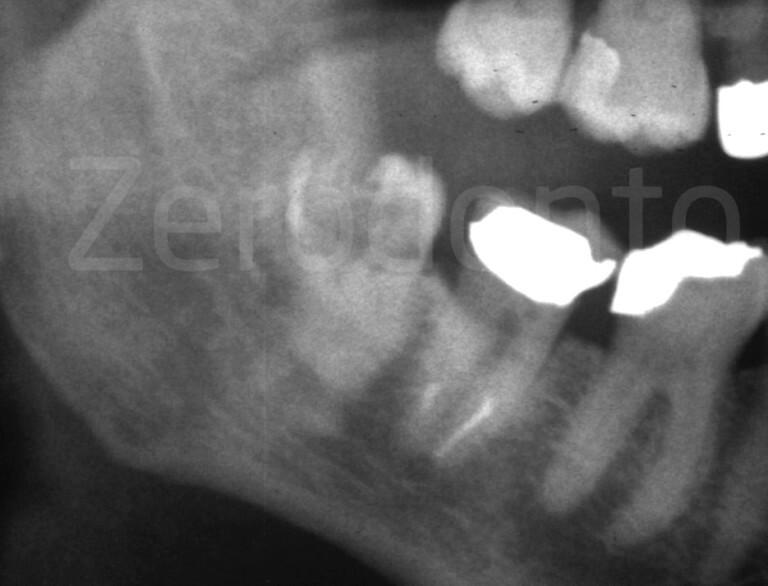 RX, zerodonto, dente semi-incluso