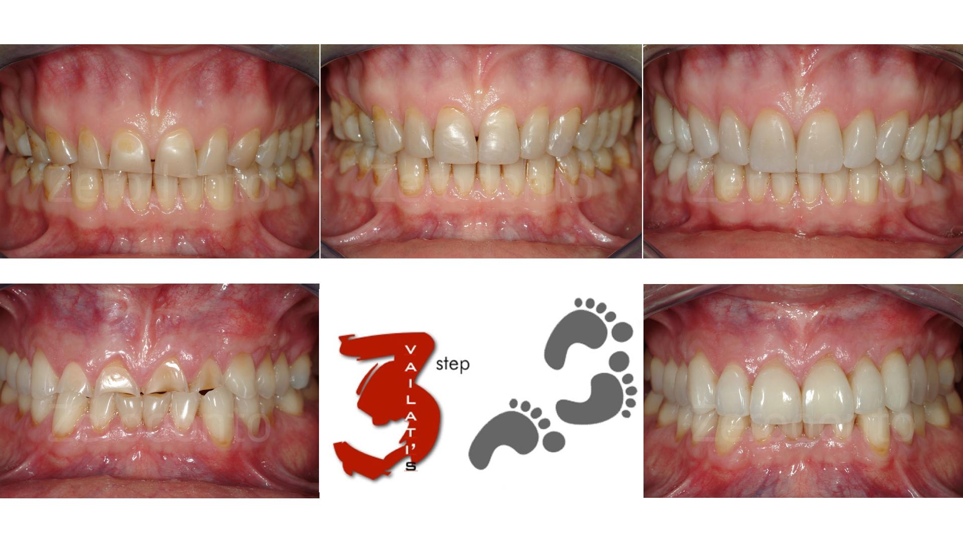 La tecnica 3-STEP classica, un protocollo semplificato per riabilitazioni adesive ADDITIVE