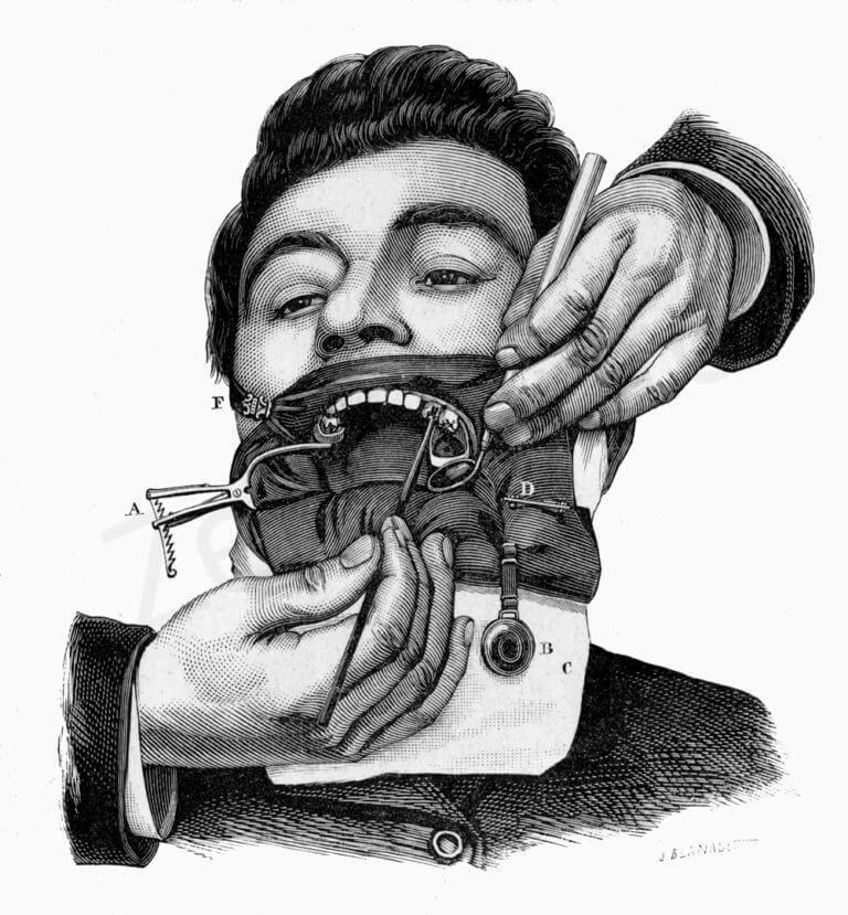 La diga del Dr. Brasseur's rubber. (Da: Andrieu E.: Traité de Dentisterie Opératoire, Octave Doin Ed., Paris 1889).