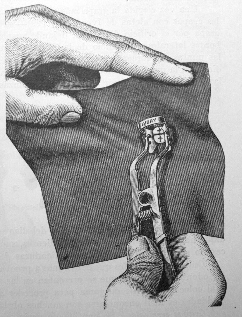 La diga può essere posizionata anche senza l'aiuto dell'assistente. (Da: Harris C.H.: Principles and Practice of Dentistry, Gorgas F.J. ed., P. Blakiston, Son & Co., Philadelphia 1885).