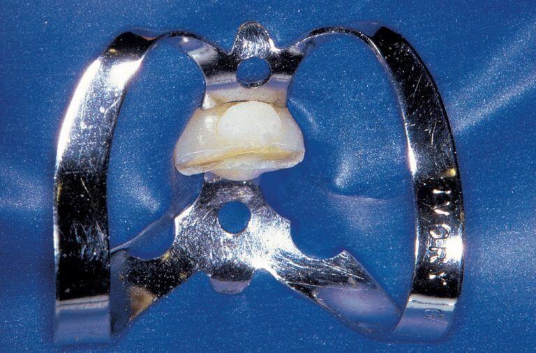 Fig. 32. A. Il dente fratturato che richiede la terapia endodontica non era ancora erotto completamente ed aveva l'equatore ancora al di sotto del bordo gengivale. Per poter posizionare l'uncino della diga è stato necessario polimerizzare due palline di composito sullo smalto vestibolare e palatino