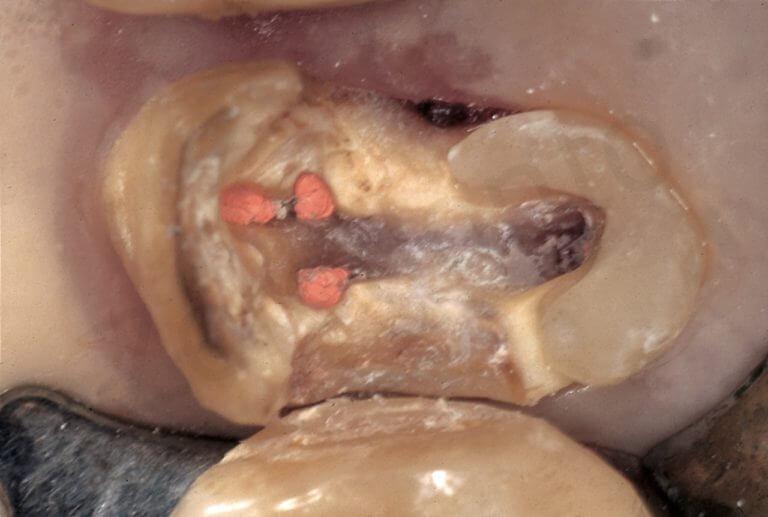 Lo stesso tipo di pre-trattamento è stato eseguito al molare superiore, per consentire un posizionamento stabile dell'uncino della diga.