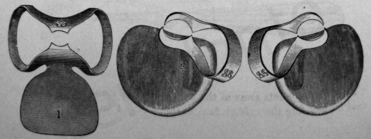 Fig. 7. Per migliorare la protezione dei tessuti molli, alcuni vecchi uncini disegnati da Palmer erano fatti con la protezione della lingua (Da: Harris C.H.: Principles and Practice of Dentistry, Gorgas F.J. ed., P. Blakiston, Son & Co., Philadelphia 1885).