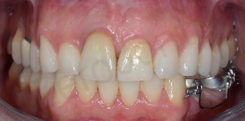 ortodonzia linguale senza attacchi,