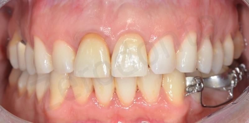 ortodonzia linguale senza attacchi, estrusione