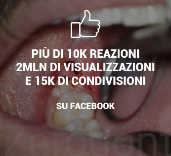 video dente giudizio semi incluso facebook zerodonto
