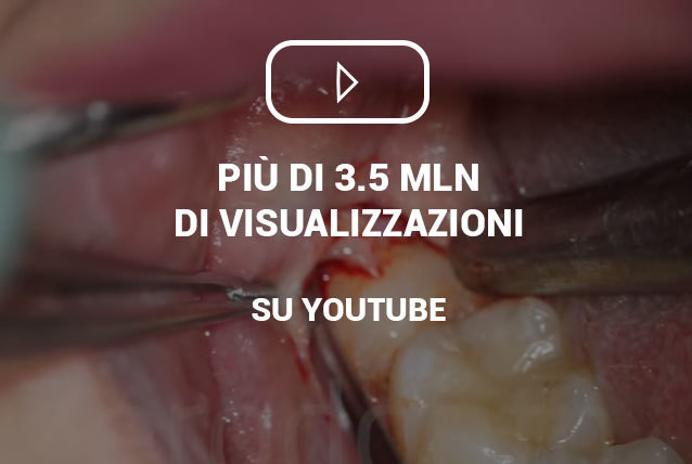 video-dente_giudizio_incluso-youtube-zerodonto