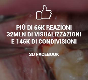 video estrazione dente giudizio incluso facebook